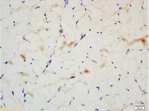 Immunohistochemistry (Formalin/PFA-fixed paraffin-embedded sections) - Anti-IRS2 antibody (ab203051)