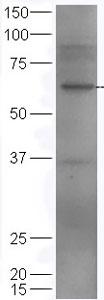 Western blot - Anti-MAG/GMA antibody (ab203060)