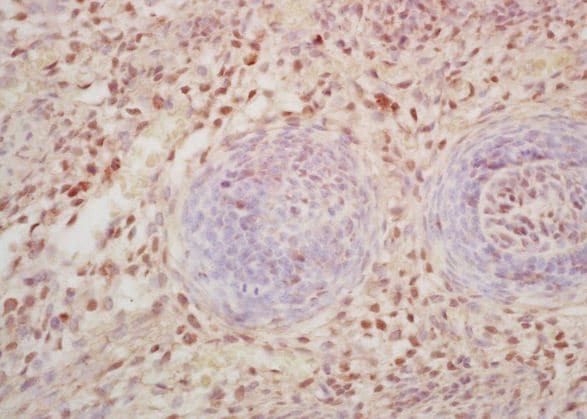Immunohistochemistry (Formalin/PFA-fixed paraffin-embedded sections) - Anti-C11B2/CYP11B2 antibody (ab203069)