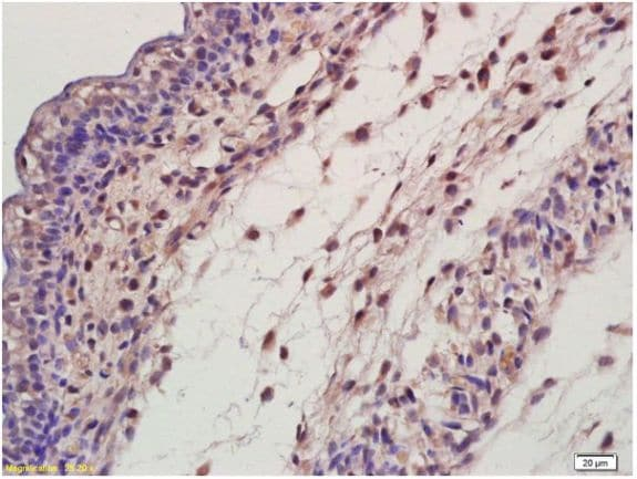 Immunohistochemistry (Formalin/PFA-fixed paraffin-embedded sections) - Anti-EDA antibody (ab203075)