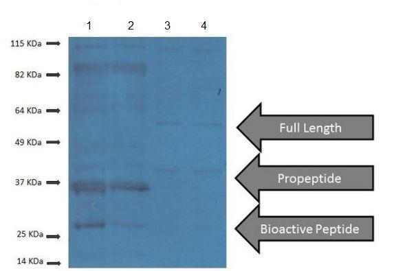 Western blot - Anti-GDF8 / Myostatin antibody (ab203076)