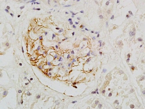 Immunohistochemistry (Formalin/PFA-fixed paraffin-embedded sections) - Anti-PODXL antibody - C-terminal (ab203079)