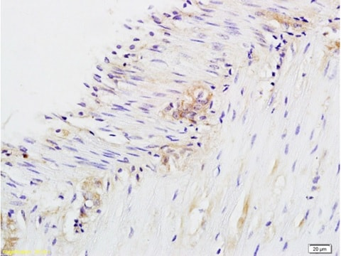 Immunohistochemistry (Formalin/PFA-fixed paraffin-embedded sections) - Anti-CD28 antibody (ab203084)