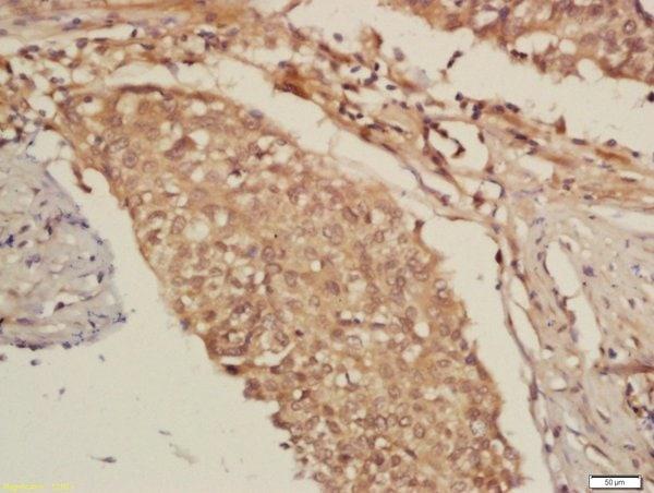 Immunohistochemistry (Formalin/PFA-fixed paraffin-embedded sections) - Anti-DNA Polymerase epsilon p59 antibody (ab203091)