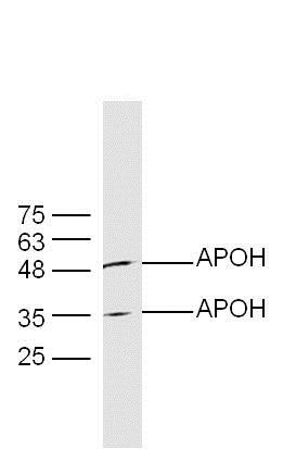 Western blot - Anti-Apo-H antibody (ab203105)
