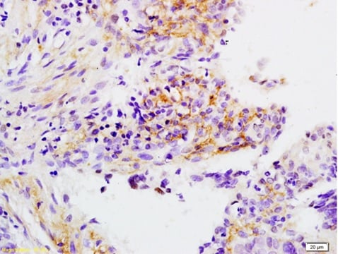 Immunohistochemistry (Formalin/PFA-fixed paraffin-embedded sections) - Anti-Apo-H antibody (ab203105)