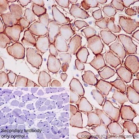 Immunohistochemistry (Formalin/PFA-fixed paraffin-embedded sections) - Anti-gamma Sarcoglycan antibody [EPR17862-7] (ab203113)
