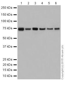 Western blot - Anti-HADHA antibody [EPR17940] (ab203114)