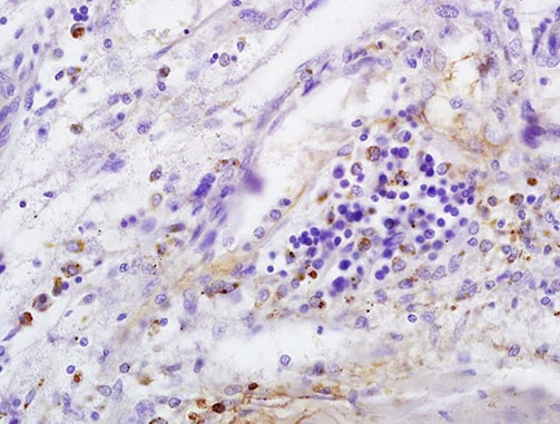 Immunohistochemistry (Formalin/PFA-fixed paraffin-embedded sections) - Anti-CD146 antibody (ab203118)
