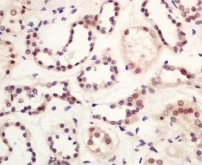 Immunohistochemistry (Formalin/PFA-fixed paraffin-embedded sections) - Anti-GLIS3 antibody (ab203121)