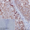 Immunohistochemistry (Formalin/PFA-fixed paraffin-embedded sections) - Anti-Hsp90 antibody [EPR16621-67] (ab203126)