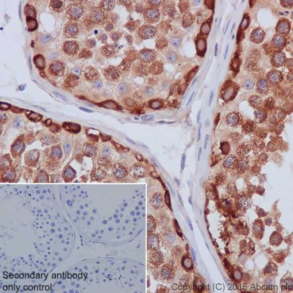 Immunohistochemistry (Formalin/PFA-fixed paraffin-embedded sections) - Anti-Hsp90 antibody [EPR16621-67] (ab203126)