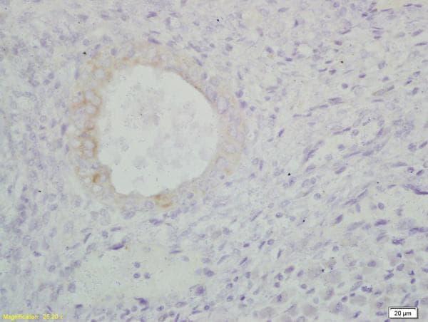Immunohistochemistry (Formalin/PFA-fixed paraffin-embedded sections) - Anti-S100A9 antibody (ab203133)