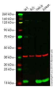 Western blot - Alexa Fluor® 647 Anti-Profilin 1 antibody [EPR6304] (ab203146)