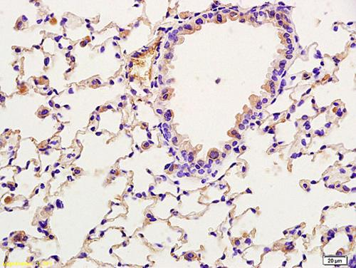Immunohistochemistry (Formalin/PFA-fixed paraffin-embedded sections) - Anti-TORC2 (phospho S171) antibody (ab203187)