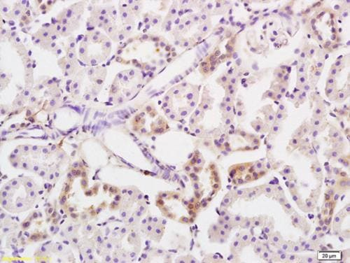 Immunohistochemistry (Formalin/PFA-fixed paraffin-embedded sections) - Anti-PKC nu/PRKD3 antibody (ab203188)