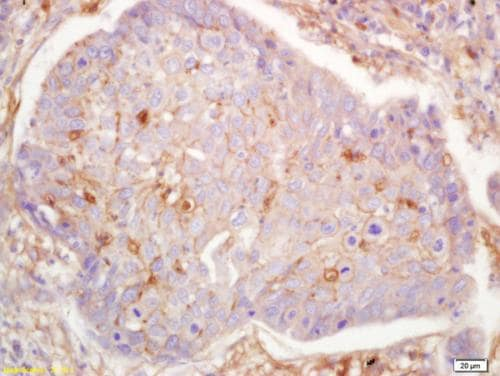 Immunohistochemistry (Formalin/PFA-fixed paraffin-embedded sections) - Anti-G protein alpha S antibody (ab203194)