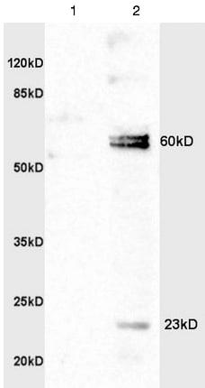 Western blot - Anti-IL-20R1 antibody (ab203196)