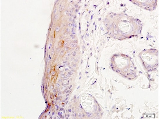 Immunohistochemistry (Formalin/PFA-fixed paraffin-embedded sections) - Anti-NMDAR2A antibody (ab203197)