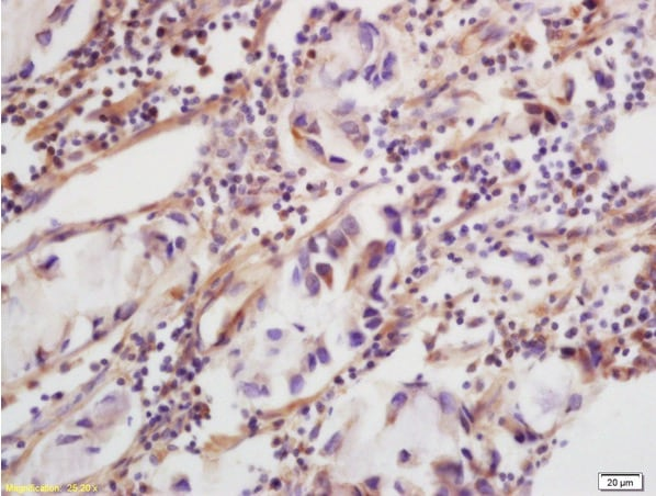 Immunohistochemistry (Formalin/PFA-fixed paraffin-embedded sections) - Anti-CLEC5A antibody (ab203200)