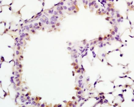 Immunohistochemistry (Formalin/PFA-fixed paraffin-embedded sections) - Anti-ADCY10/SAC antibody (ab203204)