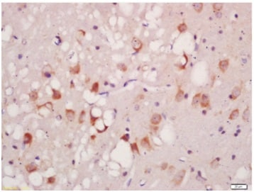 Immunohistochemistry (Formalin/PFA-fixed paraffin-embedded sections) - Anti-ULK1 (phospho S556) antibody (ab203207)