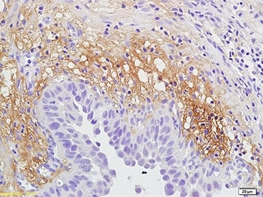 Immunohistochemistry (Formalin/PFA-fixed paraffin-embedded sections) - Anti-IL-12RB2 antibody (ab203209)