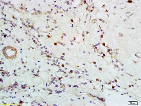 Immunohistochemistry (Formalin/PFA-fixed paraffin-embedded sections) - Anti-CXCR5 antibody (ab203212)