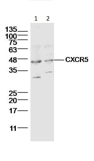 Western blot - Anti-CXCR5 antibody (ab203212)