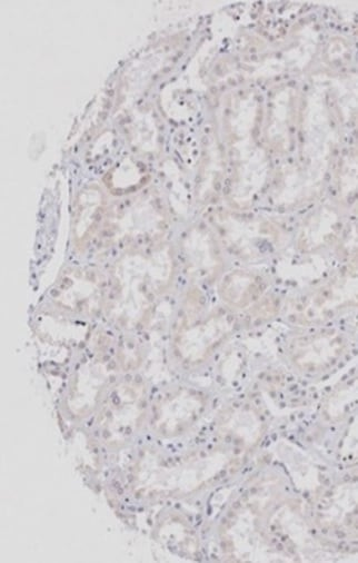 Immunohistochemistry (Formalin/PFA-fixed paraffin-embedded sections) - Anti-Wnt2b antibody (ab203225)