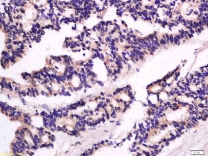 Immunohistochemistry (Formalin/PFA-fixed paraffin-embedded sections) - Anti-GBP2 antibody (ab203238)