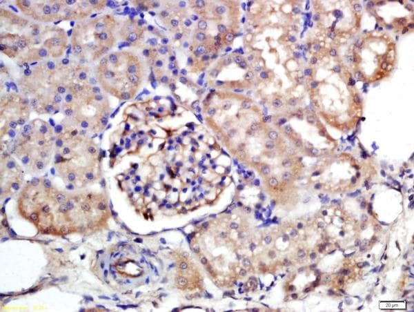 Immunohistochemistry (Formalin/PFA-fixed paraffin-embedded sections) - Anti-SLC10A1/NTCP1 antibody (ab203243)