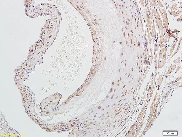 Immunohistochemistry (Formalin/PFA-fixed paraffin-embedded sections) - Anti-LOX 1 antibody - C-terminal (ab203246)