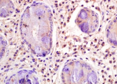 Immunohistochemistry (Formalin/PFA-fixed paraffin-embedded sections) - Anti-CD33 antibody (ab203253)