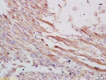 Immunohistochemistry (Formalin/PFA-fixed paraffin-embedded sections) - Anti-VLDL Receptor / VLDL-R antibody (ab203271)