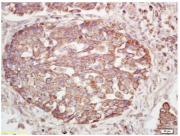 Immunohistochemistry (Formalin/PFA-fixed paraffin-embedded sections) - Anti-Insulin Receptor beta (phospho Y1185) antibody (ab203278)