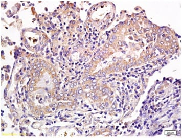Immunohistochemistry (Formalin/PFA-fixed paraffin-embedded sections) - Anti-CD1a antibody (ab203283)