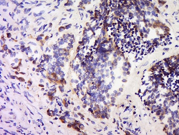 Immunohistochemistry (Formalin/PFA-fixed paraffin-embedded sections) - Anti-SPARC antibody (ab203284)