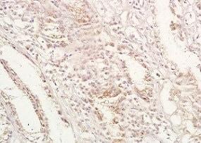 Immunohistochemistry (Formalin/PFA-fixed paraffin-embedded sections) - Anti-GPA33 antibody (ab203286)