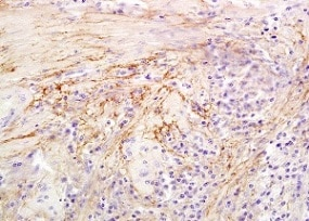 Immunohistochemistry (Formalin/PFA-fixed paraffin-embedded sections) - Anti-HYAL1 antibody (ab203293)