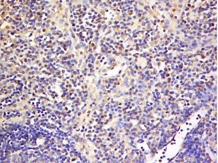 Immunohistochemistry (Formalin/PFA-fixed paraffin-embedded sections) - Anti-GITR antibody (ab203297)