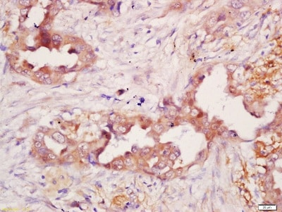 Immunohistochemistry (Formalin/PFA-fixed paraffin-embedded sections) - Anti-CD21 antibody - C-terminal (ab203299)
