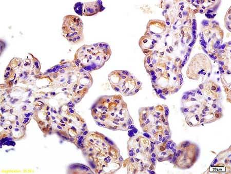 Immunohistochemistry (Formalin/PFA-fixed paraffin-embedded sections) - Anti-hCG beta  antibody (ab203330)