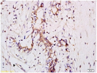 Immunohistochemistry (Formalin/PFA-fixed paraffin-embedded sections) - Anti-CD11a antibody (ab203336)