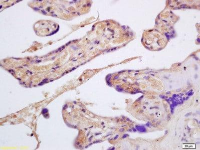 Immunohistochemistry (Formalin/PFA-fixed paraffin-embedded sections) - Anti-GYPB/GPB antibody (ab203341)