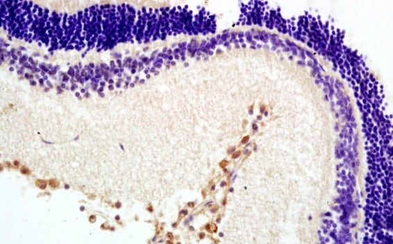 Immunohistochemistry (Formalin/PFA-fixed paraffin-embedded sections) - Anti-Melatonin Receptor 1B/MTNR1B antibody (ab203346)