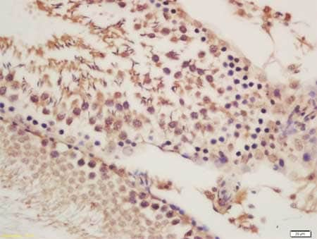 Immunohistochemistry (Formalin/PFA-fixed paraffin-embedded sections) - Anti-ORP1 antibody (ab203352)