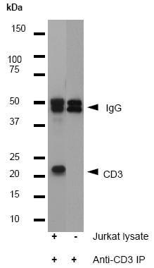 Immunoprecipitation - Anti-CD3 epsilon antibody [E272] - BSA and Azide free (ab203357)