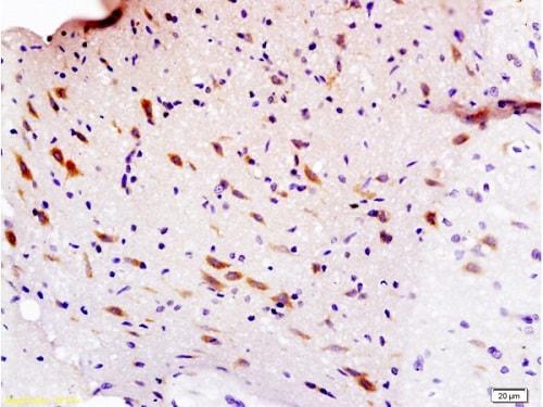 Immunohistochemistry (Formalin/PFA-fixed paraffin-embedded sections) - Anti-Semaphorin 3F antibody (ab203394)