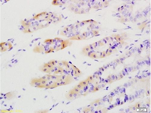 Immunohistochemistry (Formalin/PFA-fixed paraffin-embedded sections) - Anti-Tenascin C antibody (ab203395)